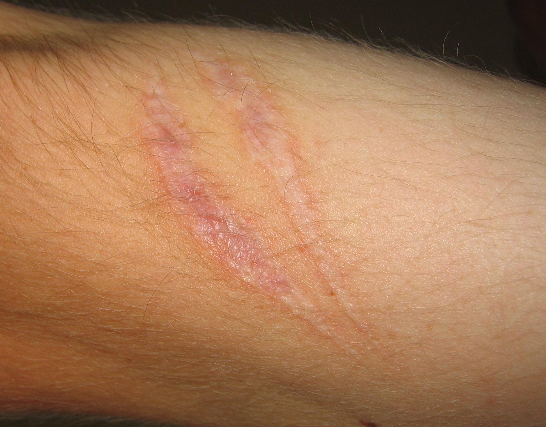 scar on arm