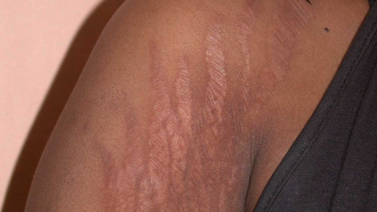 The Causes Of Arm Stretch Marks And How To Get Rid Of Them